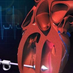 New technology points toward minimally invasive heart repair
