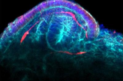 Engineered Miniature Kidneys Come Of Age
