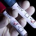 60-летней работнице секс-индустрии поставили диагноз ВИЧ