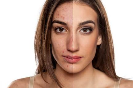 benzoyl peroxide zat berbahaya pada produk kosmetik