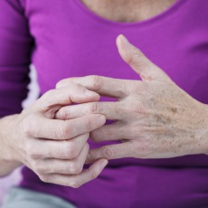 Picture of arthritic fingers