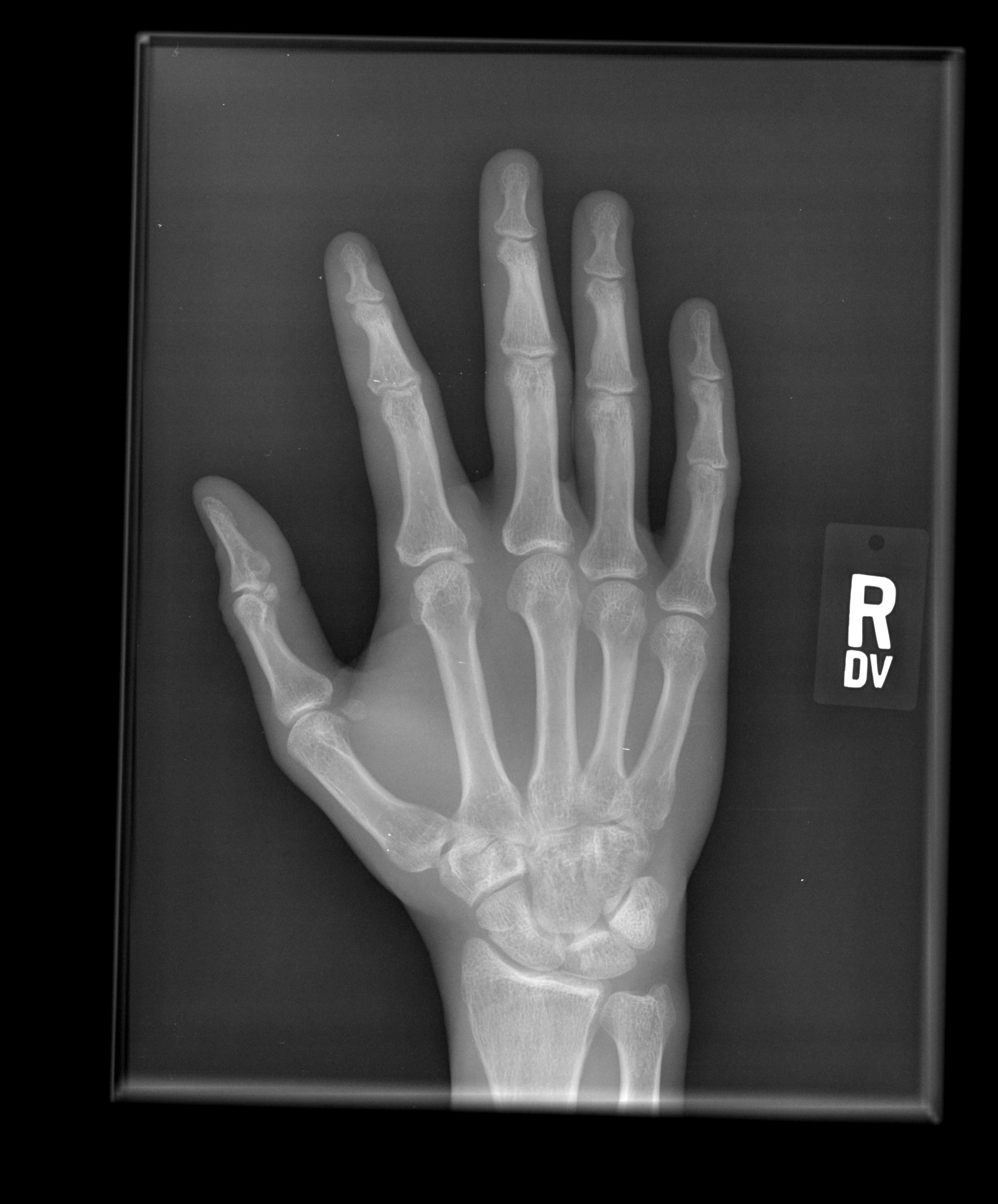 Radiography Program Open House To Celebrate The Discovery Of X Rays Nov 12 And 13