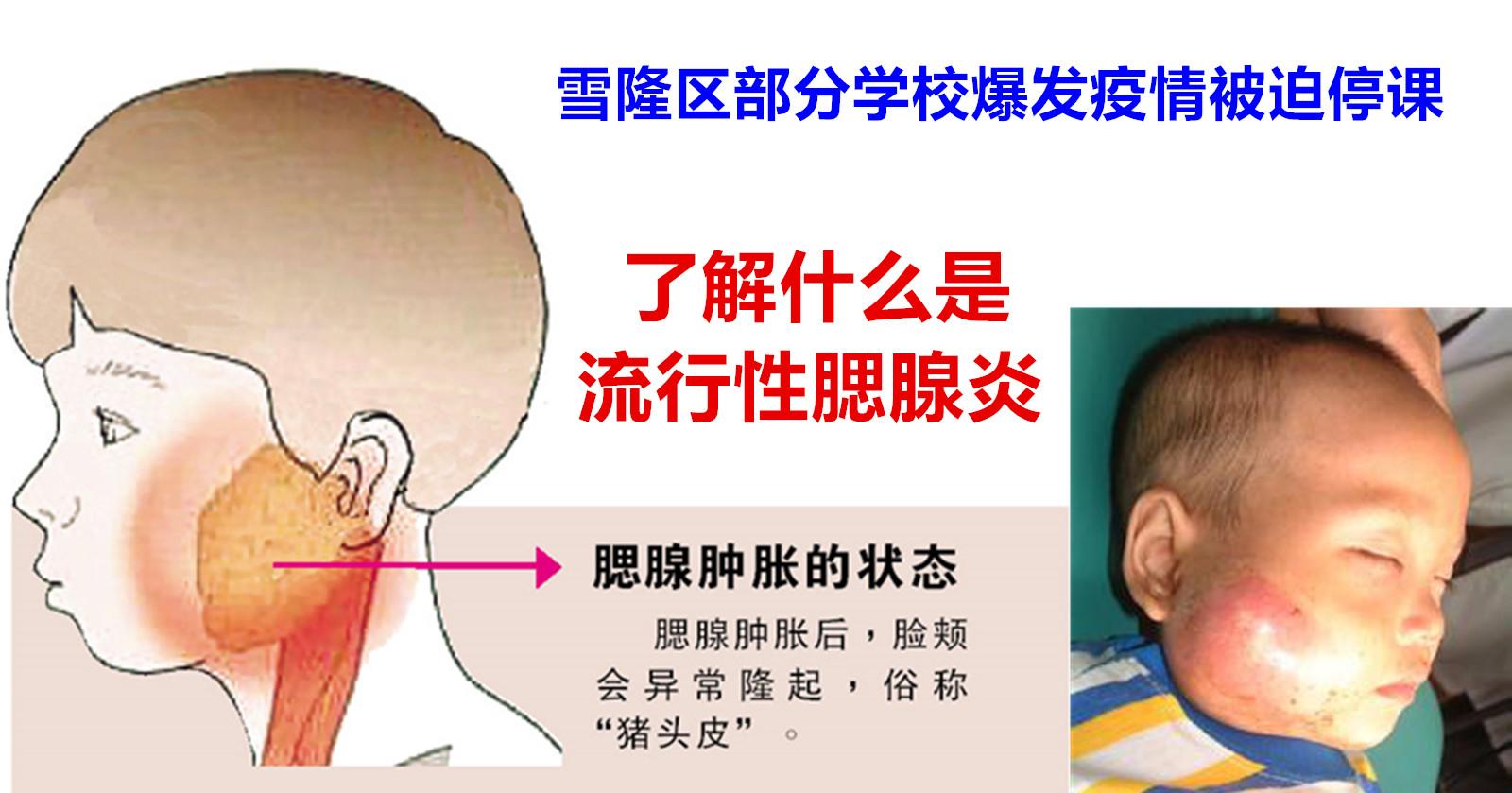 耳 炎 下 腺 性 流行