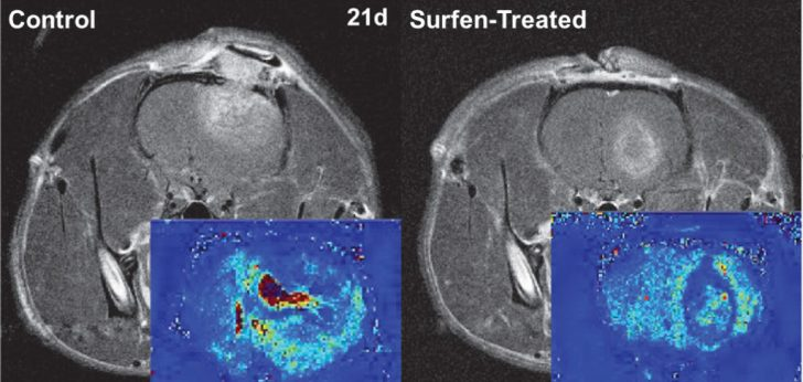 Existing drug could treat aggressive brain cancer