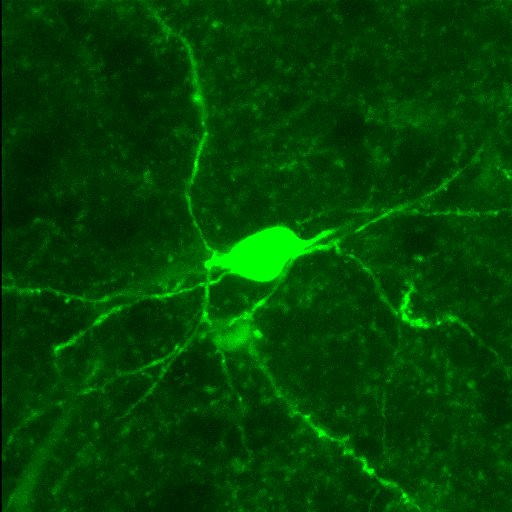 Microscope image: Neon green blob on black background