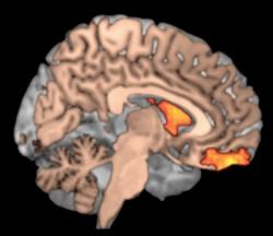 Go-getter brain