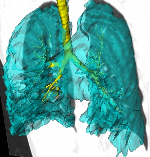 Lung image studies show unique nature of asthma
