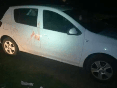Durban woman robbed and stabbed