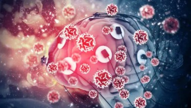 Photo of Brain damage linked to mild COVID-19 infections: study