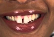 top teeth gap