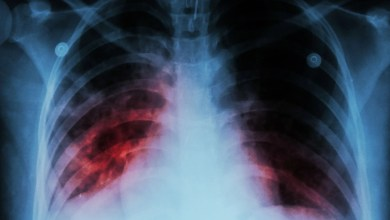 tuberculosis TB
