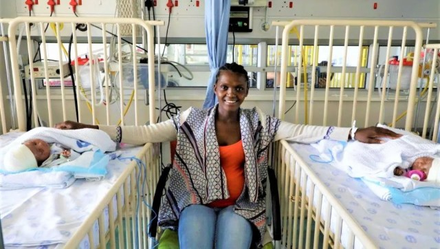 Joy for Eastern Cape mom as her twins joined at the head successfully separated