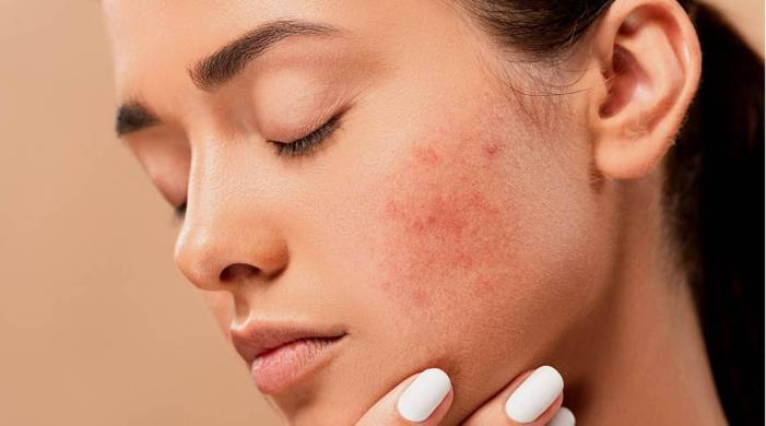Dermatologist explains the major causes of adult acne