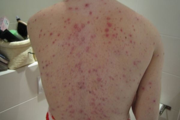 5 Common Summer Diseases And Remedies