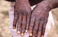 Monkeypox: Reps summon health minister