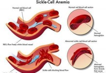 Sickle Cell Aneamia