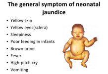 neonatal Jaundice