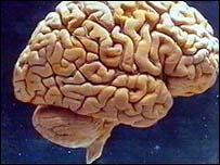 _40773106_whole_brain203.jpg