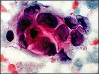 La quimioterapia destruye células cancerosas pero causa efectos muy adversos.