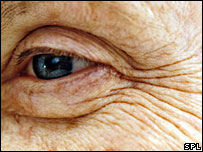El retinol logró aumentar la producción de colágeno en la piel.