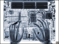 X-ray of hands on keyboard