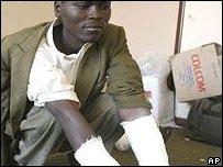 Injured opposition supporter