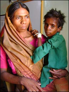 Four-year-old Guddu who is severely malnourished