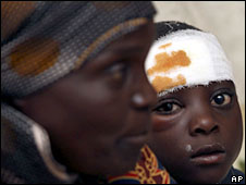 Victims of Violence in Zimbabwe