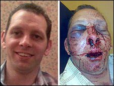 Stephen Swallow before and after the attack
