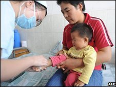 Baby treated in China