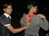 Hombre enseña sus heridas tras ataque en Bombay.