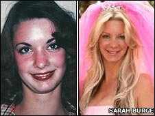 Sraha Burge, before and after surgery