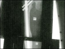 Leg fracture