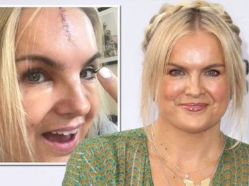 Katy Hill: Blue Peter presenter left with facial scar after hitting her head on toilet