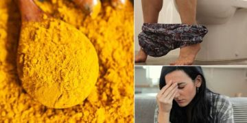 Turmeric side effects: Is it dangerous to have too much turmeric? Most common side effects