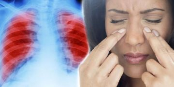 Lung cancer: An unsettling change to your face could indicate your risk