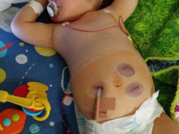 Toddler suffers kidney failure after eating seagull droppings while out playing in the garden