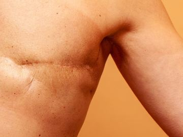 Better Survival After Lumpectomy Plus RT vs Mastectomy
