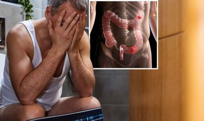 Bowel cancer signs: A sensation when you poo. This can indicate that there is a problem.
