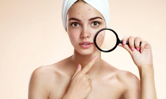 pimples are among the most worries that ladies have
