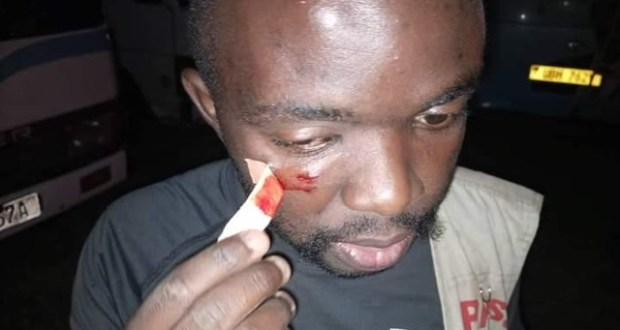 Security Personnel Torture Journalists As They Trail Amuriat
