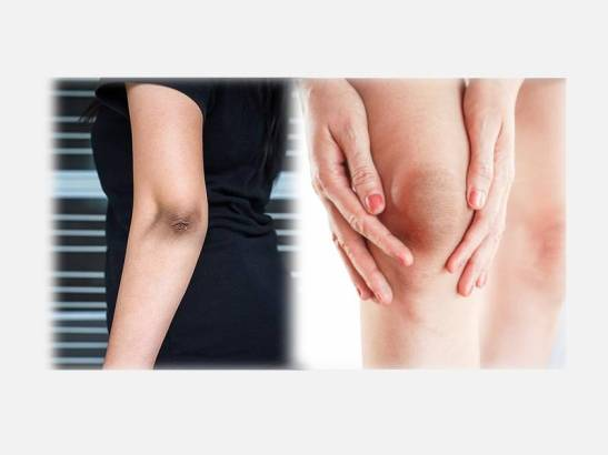 fairer elbows and knees