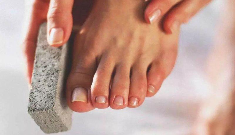 Rubbing old skin of feet