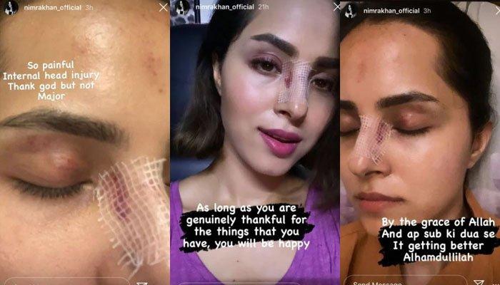 Nimra Khan injured photos