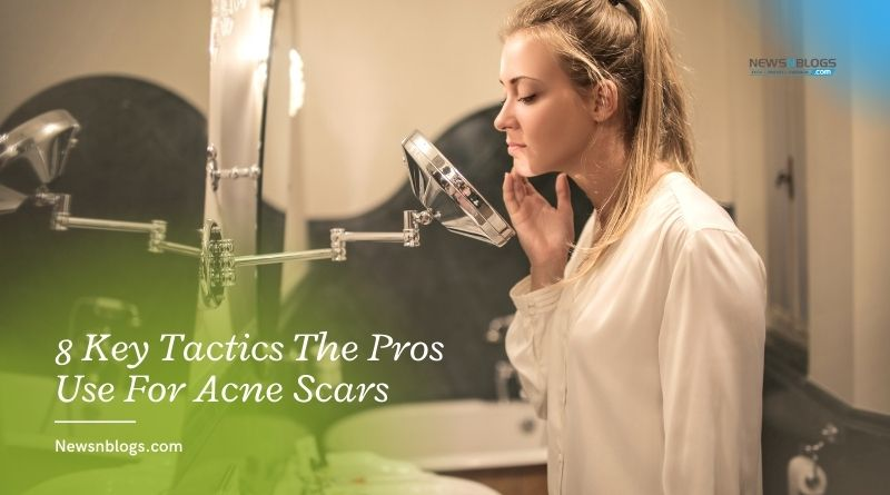 8 Key Tactics The Pros Use For Acne Scars
