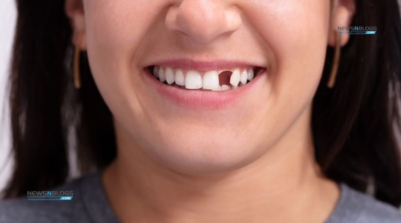 What Are the Options for a Missing Tooth?