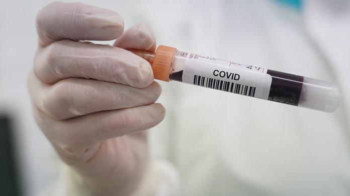 Попова назвала долю россиян с антителами к коронавирусу