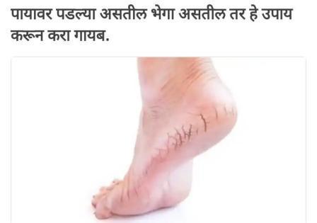 पायांच्या भेगा घालविण्याचा रामबाण उपाय हातापायांना पडलेल्या भेगा लपविण्यापेक्षा त्यावर उपचार करून त्या बऱ्या करणे केव्हाही चांगले