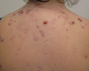 Bacne - acne on the back. Photo: James Heilman, MD