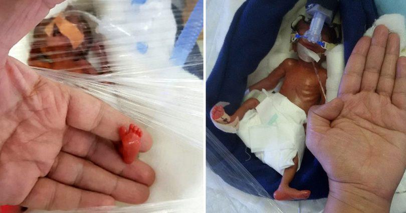 Μωρό γεννήθηκε 40 γραμμάρια και είναι ένα από τα μικρότερα στον κόσμο που επιβίωσαν